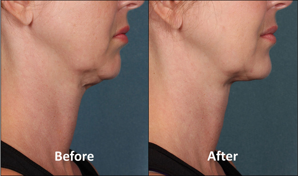 Results after Kybella treatment.