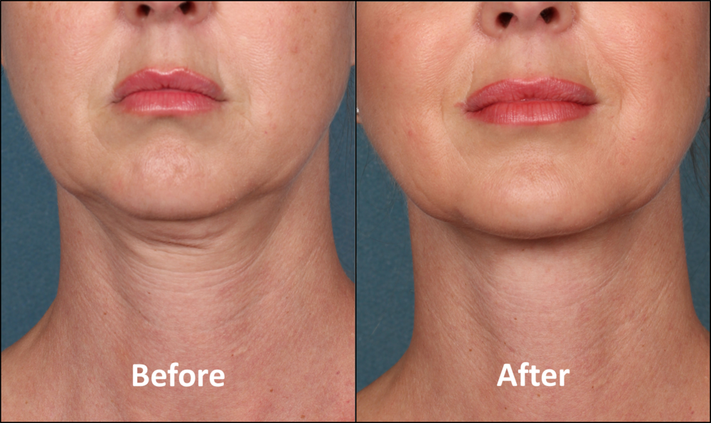 Before and After: Results after Kybella treatments.