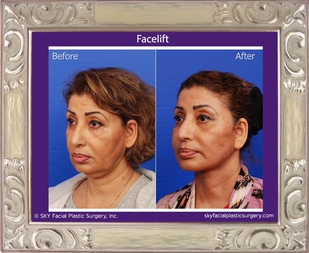 Results show that a facelift can reposition droopy volume & tighten loose skin to make a patient look 10-15 years younger.