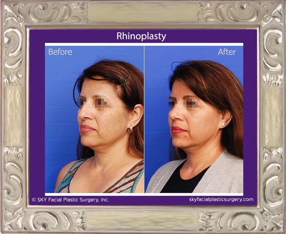 Left Oblique View Rhinoplasty