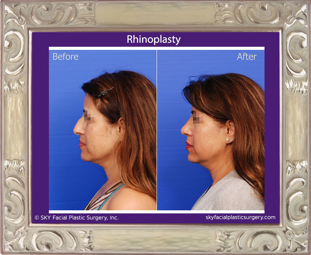 Left Lateral View Rhinoplasty