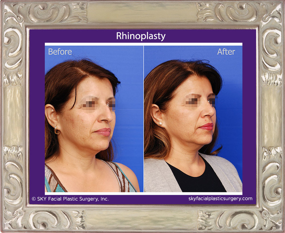 Right Oblique View Rhinoplasty