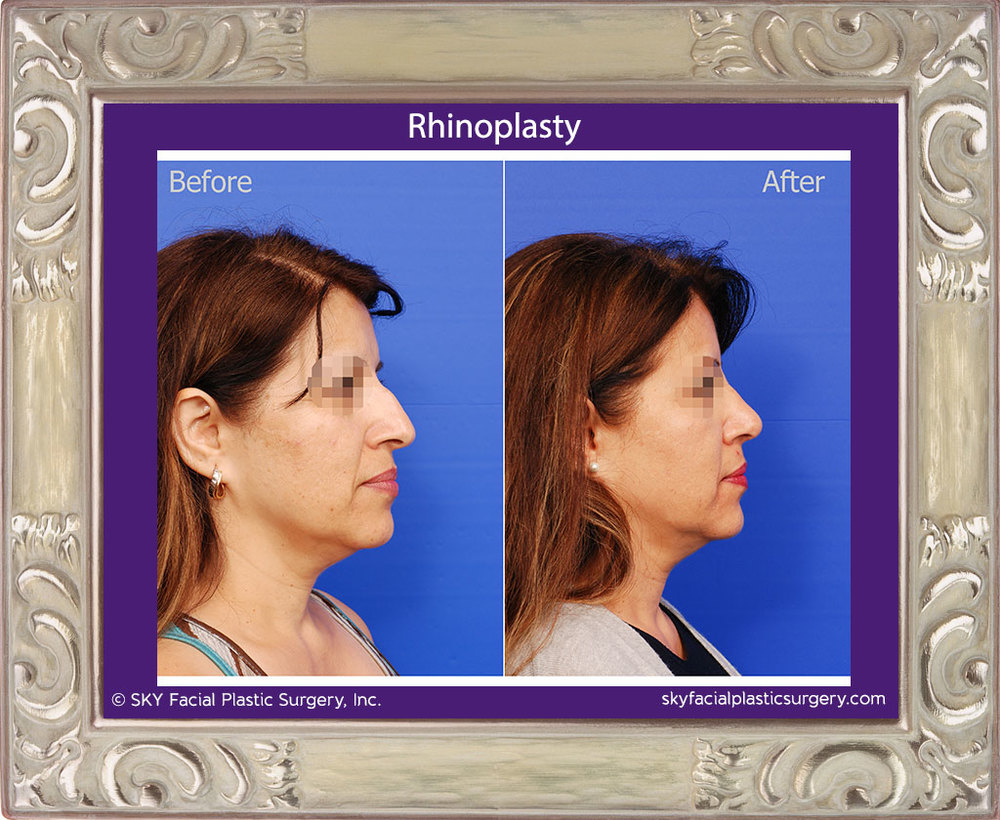 Right Lateral View Rhinoplasty