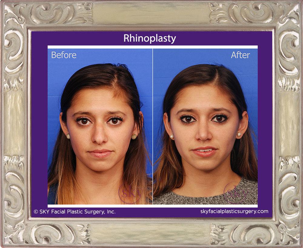 SKY-Facial-Plastic-Surgery-Rhinoplasty-22A.jpg