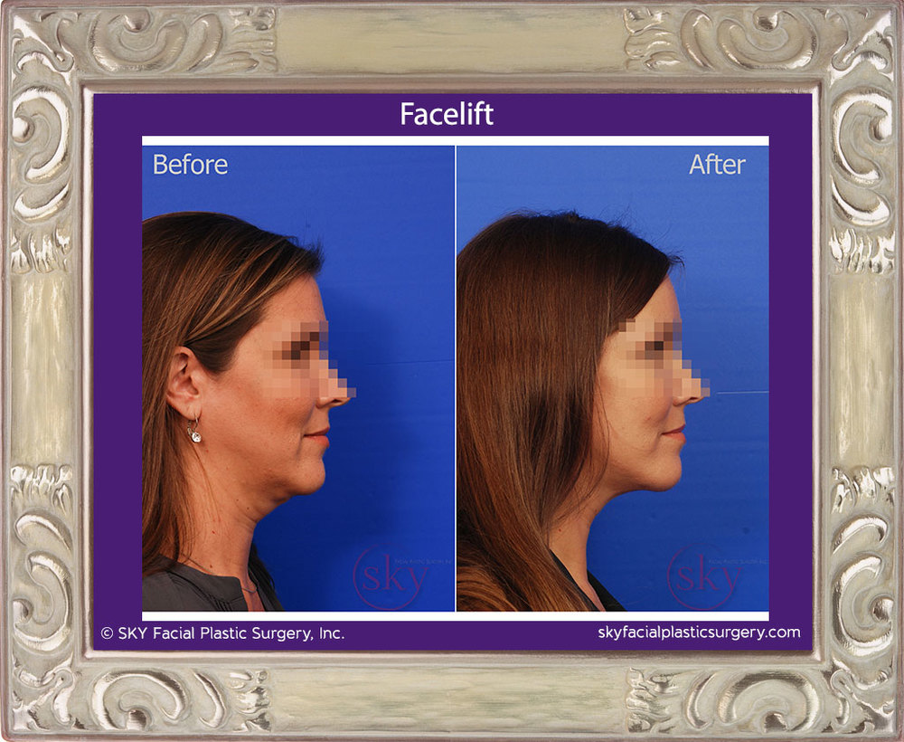 SKY-Facial-Plastic-Surgery-Facelift-8E.jpg