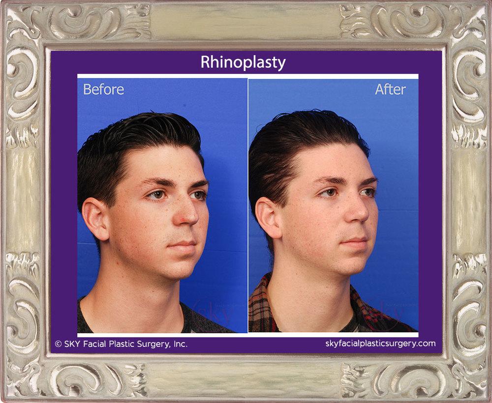 SKY-Facial-Plastic-Surgery-Rhinoplasty-23E.jpg