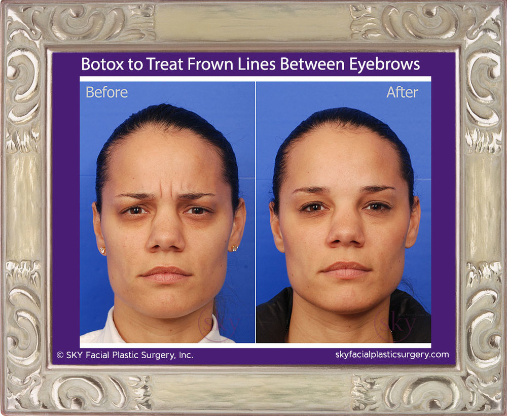 Botox-to-Forehead-and-Glabella-2.jpg