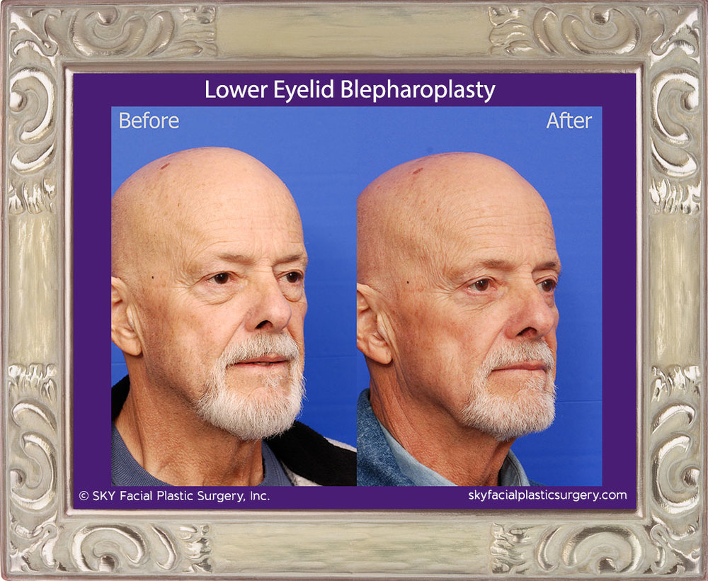 Transconjunctival Lower Lid Blepharoplasty with Skin Pinch