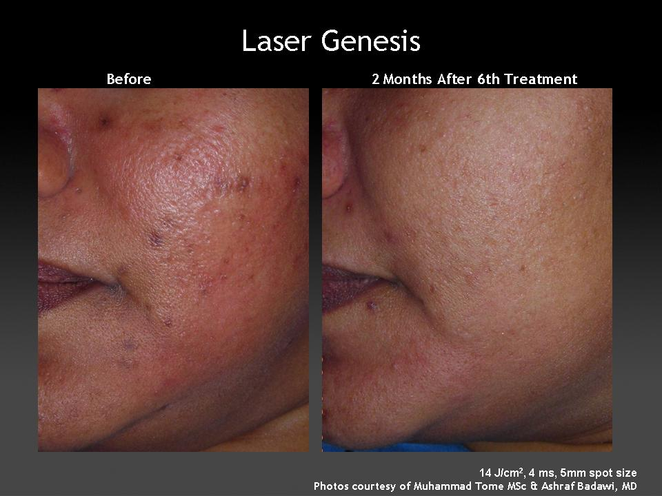 Example of face treated with Laser Genesis for undesirable pigmentation and blemishes.