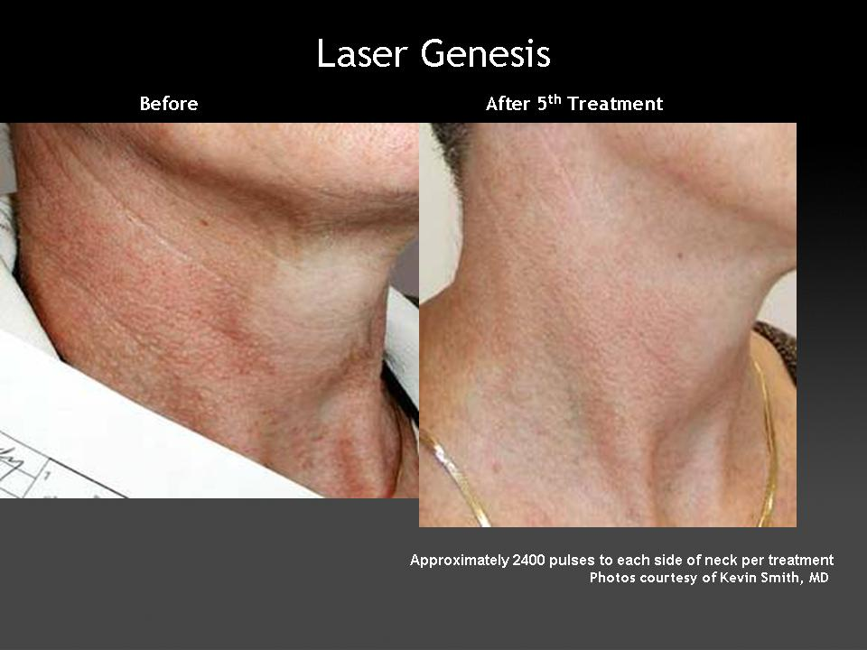 Example of neck treated with Laser Genesis for redness, fine lines and wrinkles.
