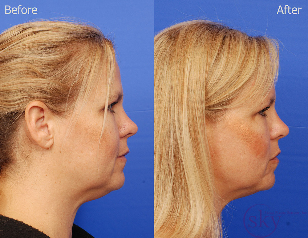 Kybella - submental fat removal