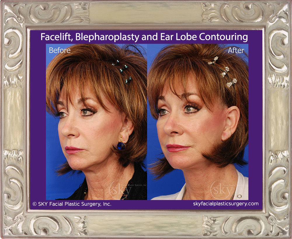 Facelift, blepharoplasty and ear lobe contouring