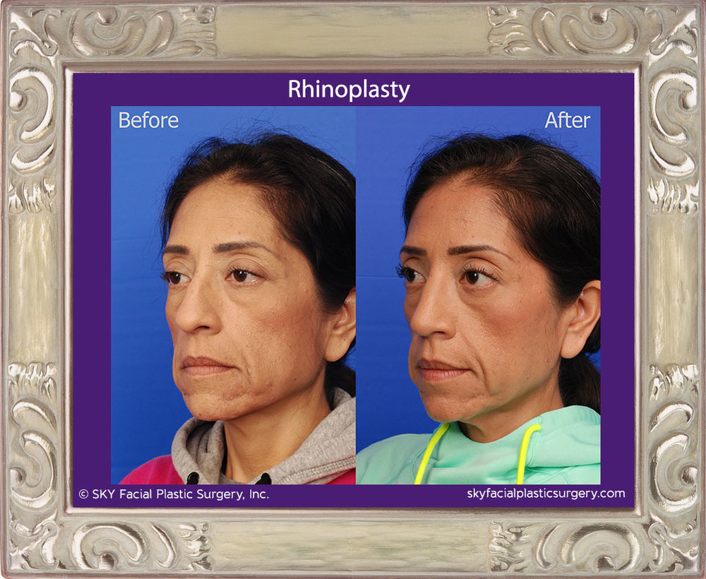 Cosmetic Rhinoplasty - tip refinement