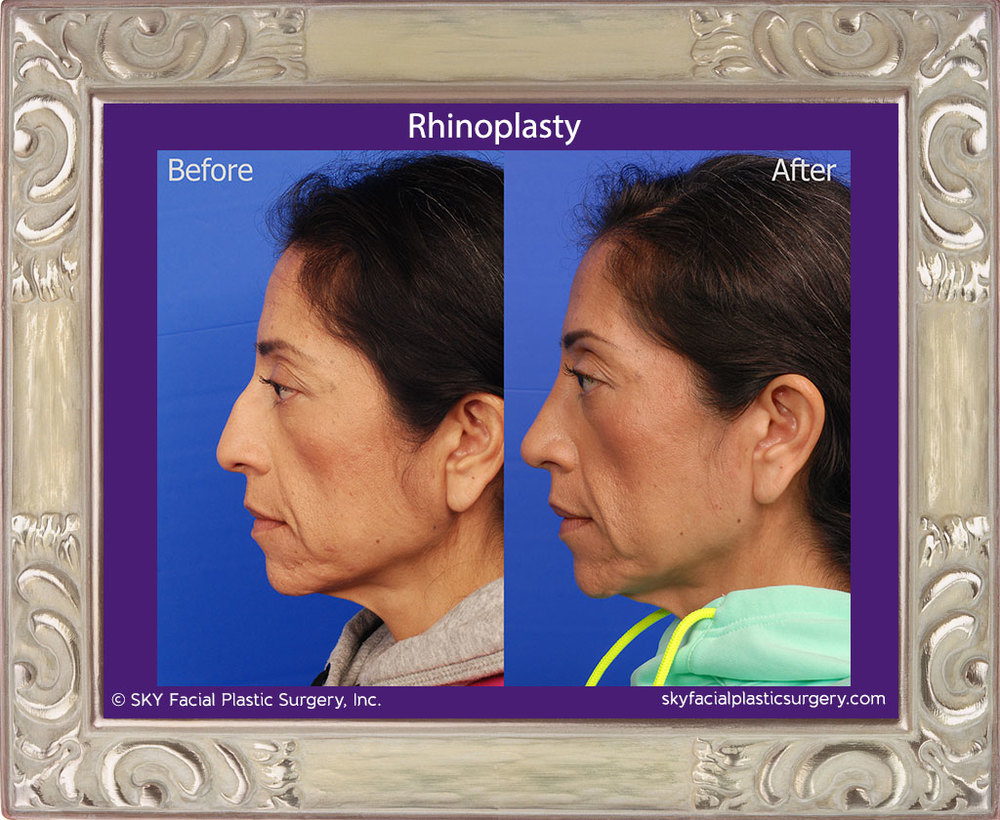 Cosmetic rhinoplasty - Bump removal