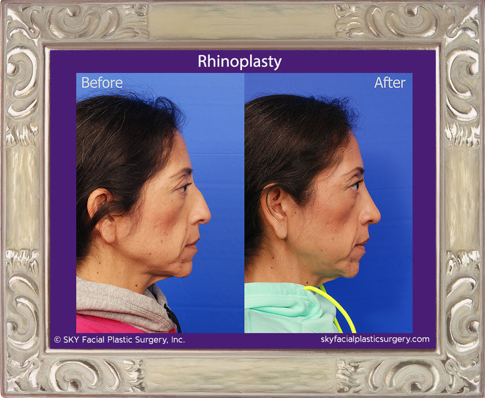 Copy of Cosmetic rhinoplasty