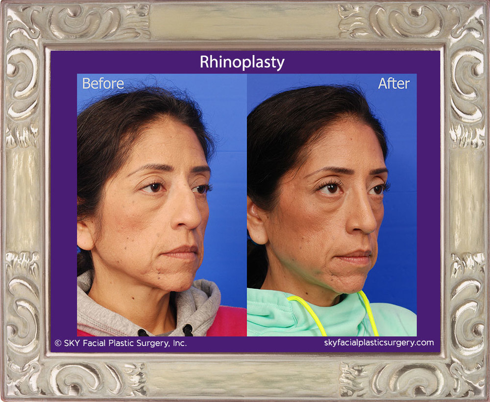 Cosmetic rhinoplasty