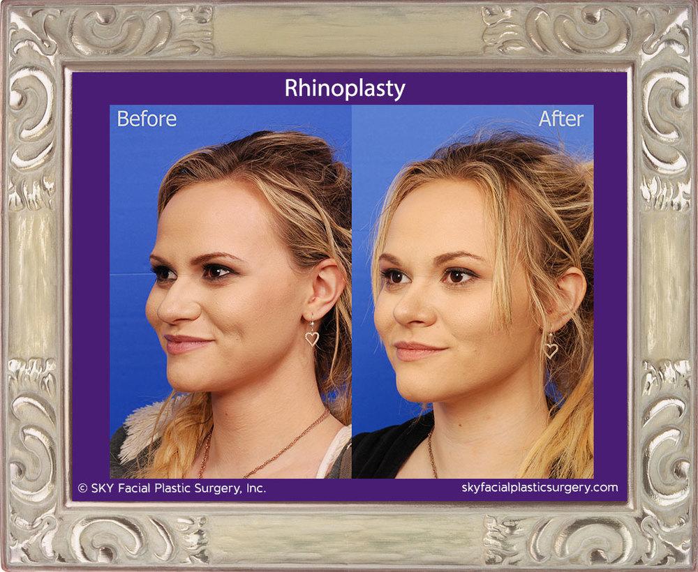 Cosmetic Rhinoplasty