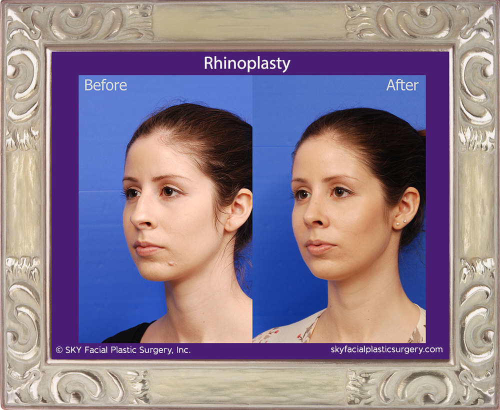 Copy of Rhinoplasty - Cosmetic