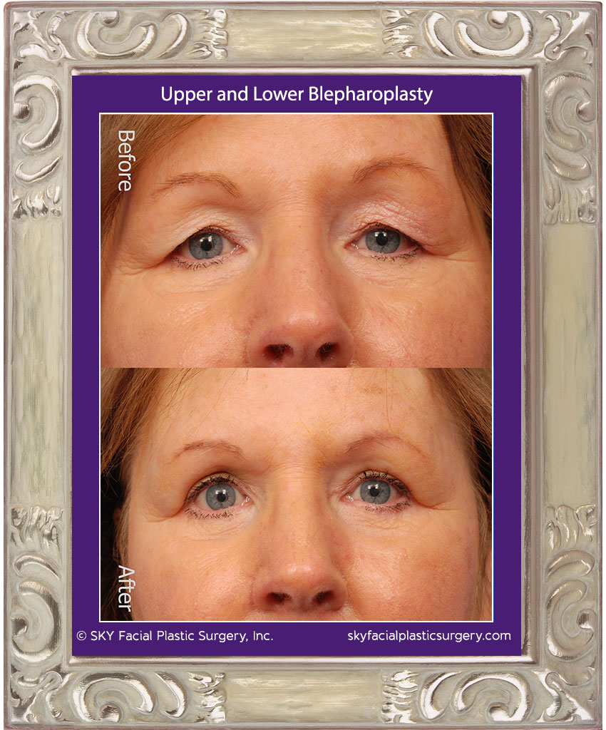 Upper and lower lid blepharoplasty