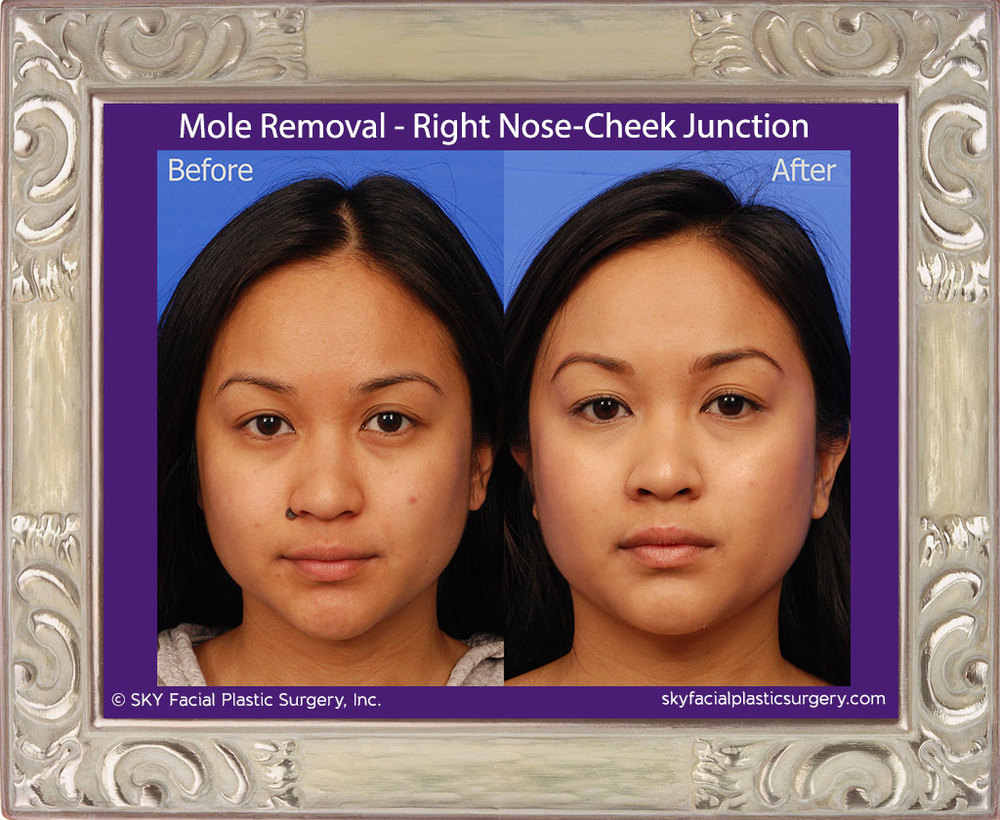 Mole Removal - Right Nose-Cheek Junction