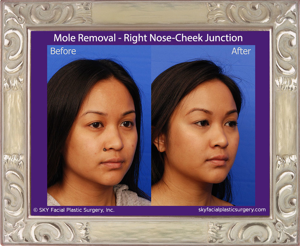 Mole Removal Right Nose-Cheek Junction