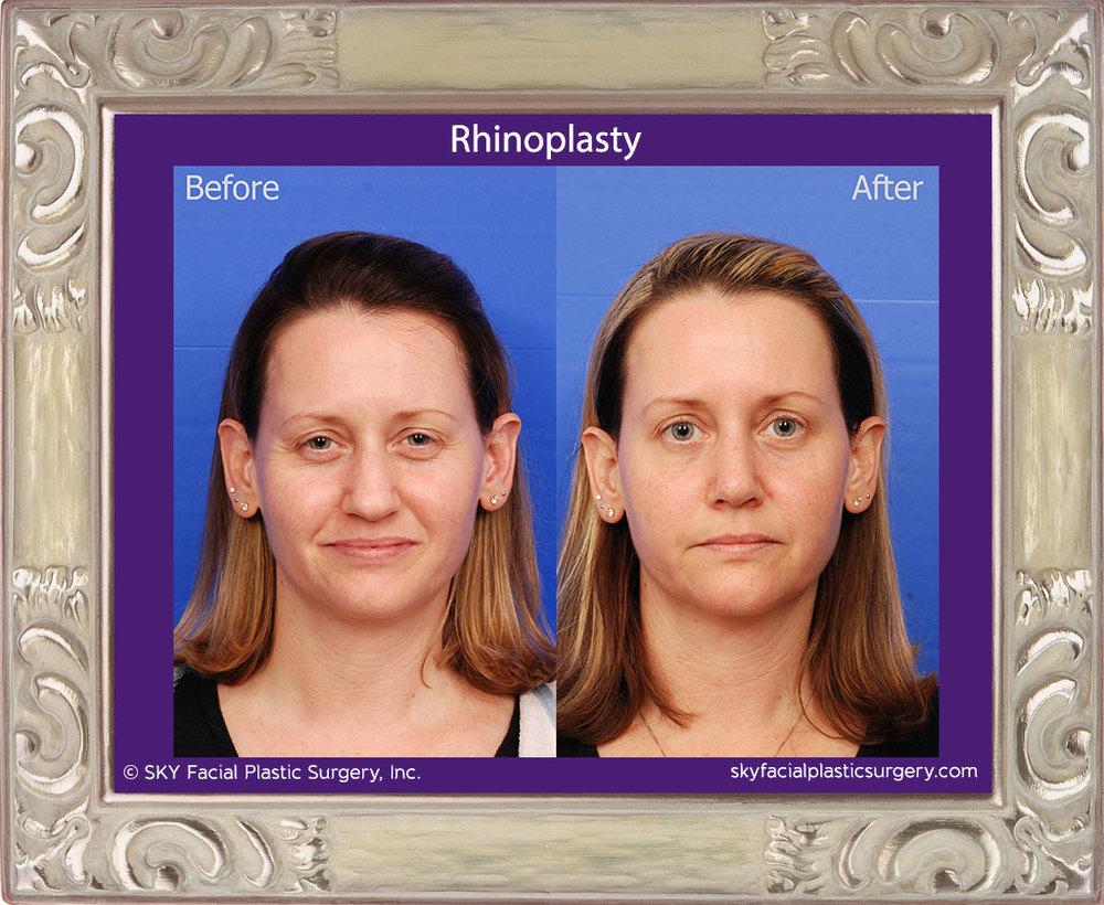 SKY-Facial-Plastic-Surgery-Rhinoplasty-30A.jpg