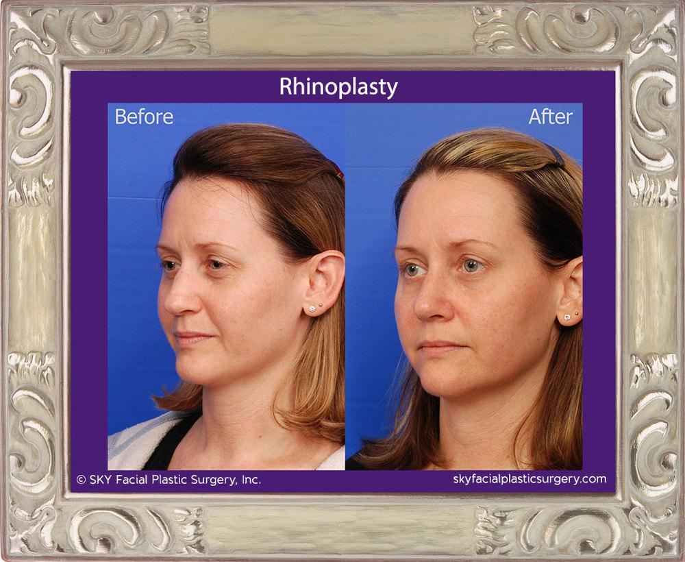 SKY-Facial-Plastic-Surgery-Rhinoplasty-30C.jpg