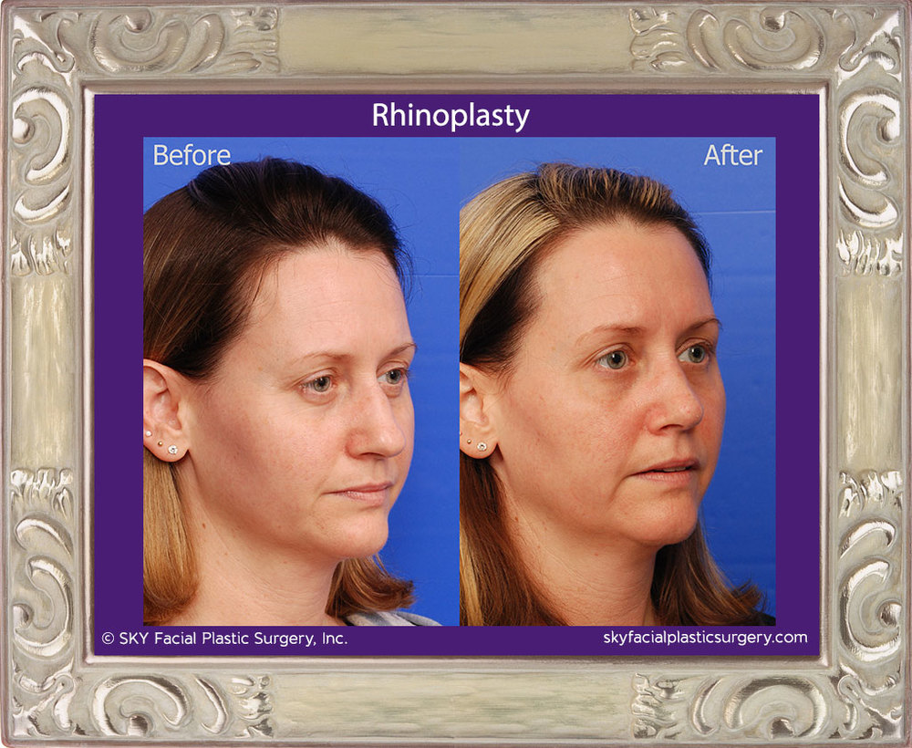 SKY-Facial-Plastic-Surgery-Rhinoplasty-30D.jpg