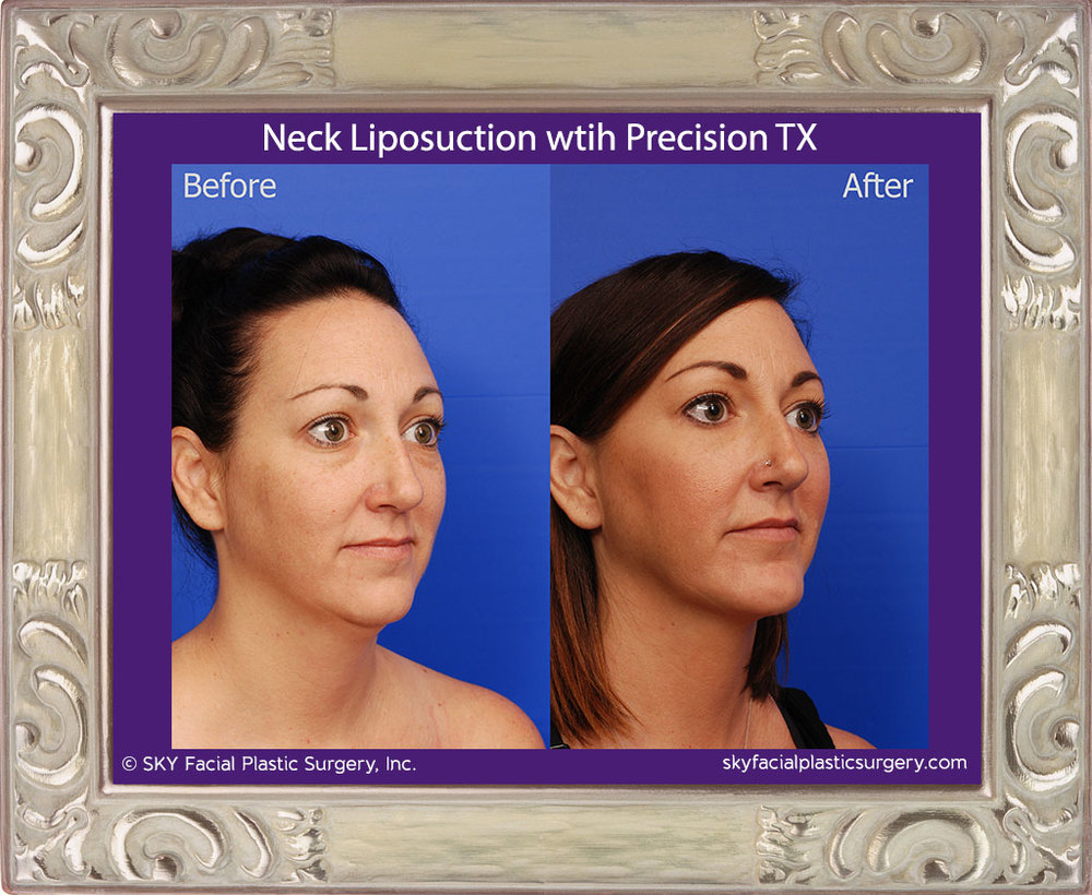 Neck liposuction with Precision TX