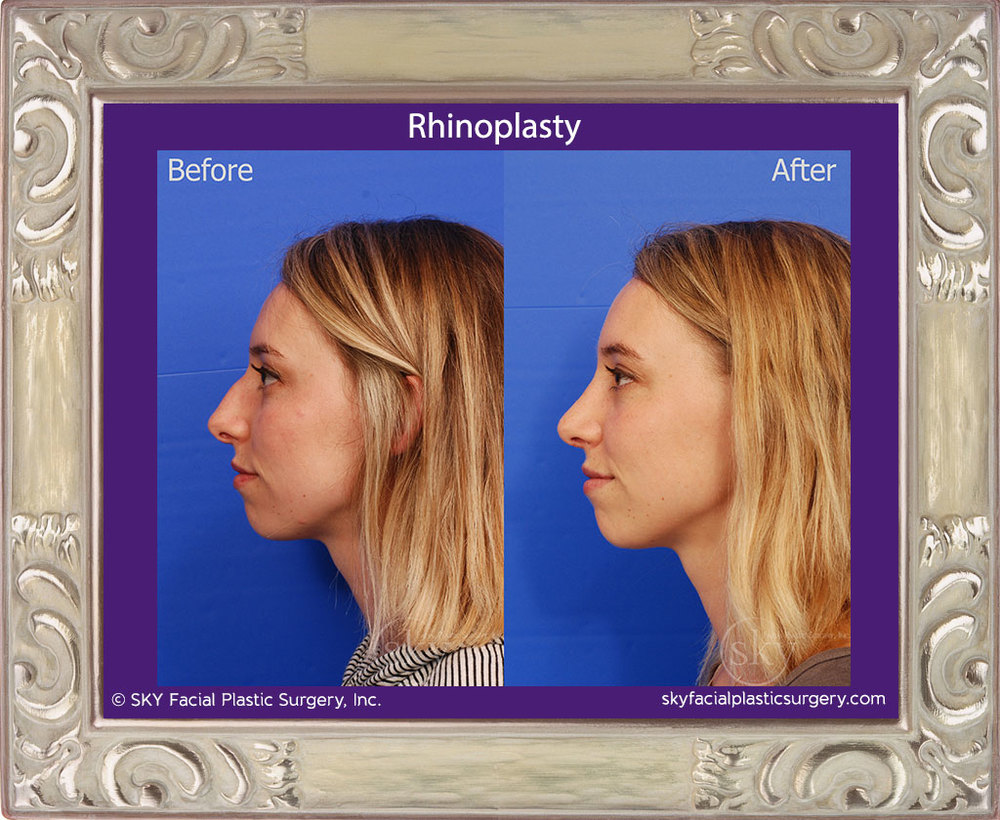 Copy of Rhinoplasty - Bump Removal, Tip Refinement