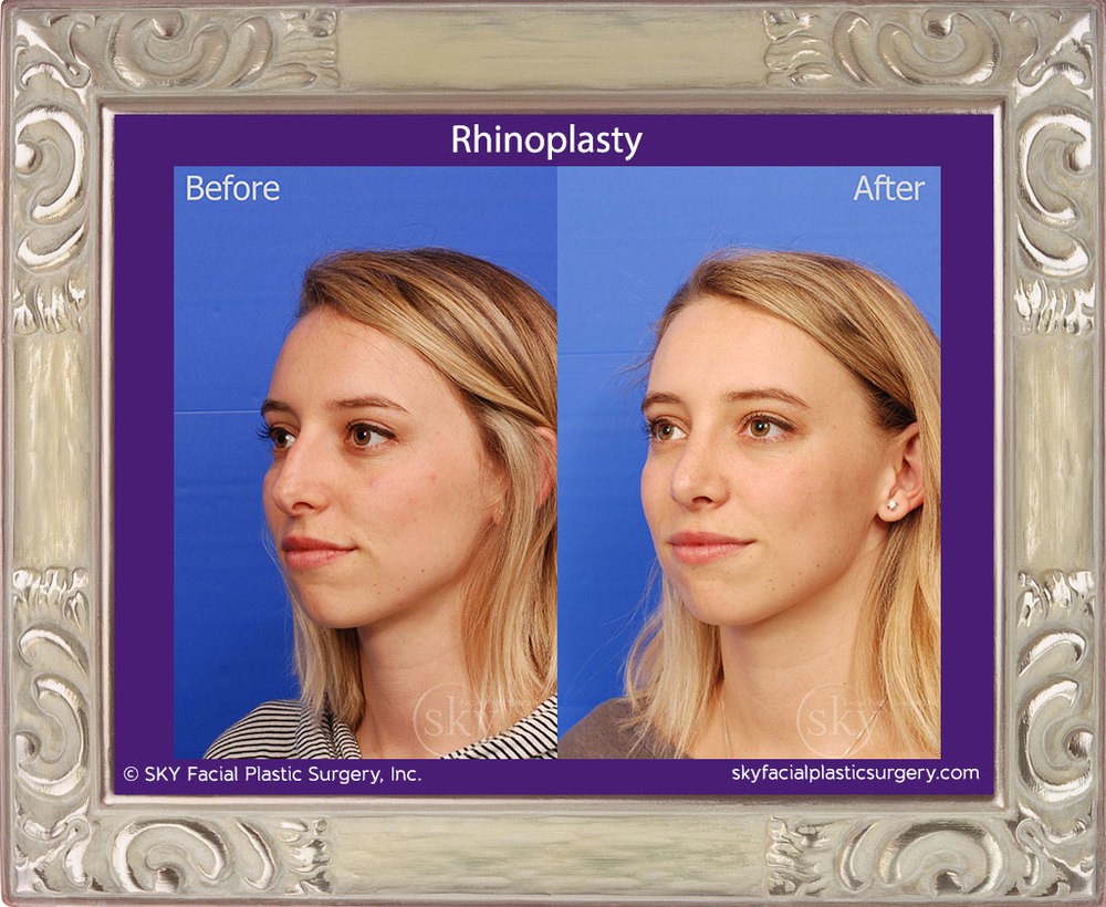 Rhinoplasty - Bump Removal, Tip Refinement
