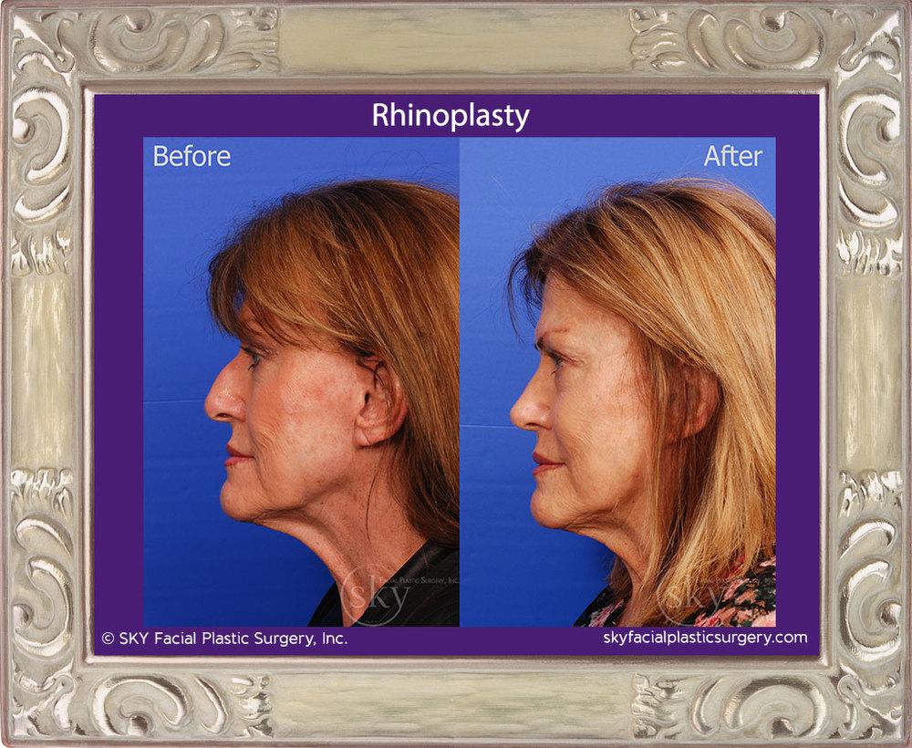 Rhinoplasty - Cosmetic