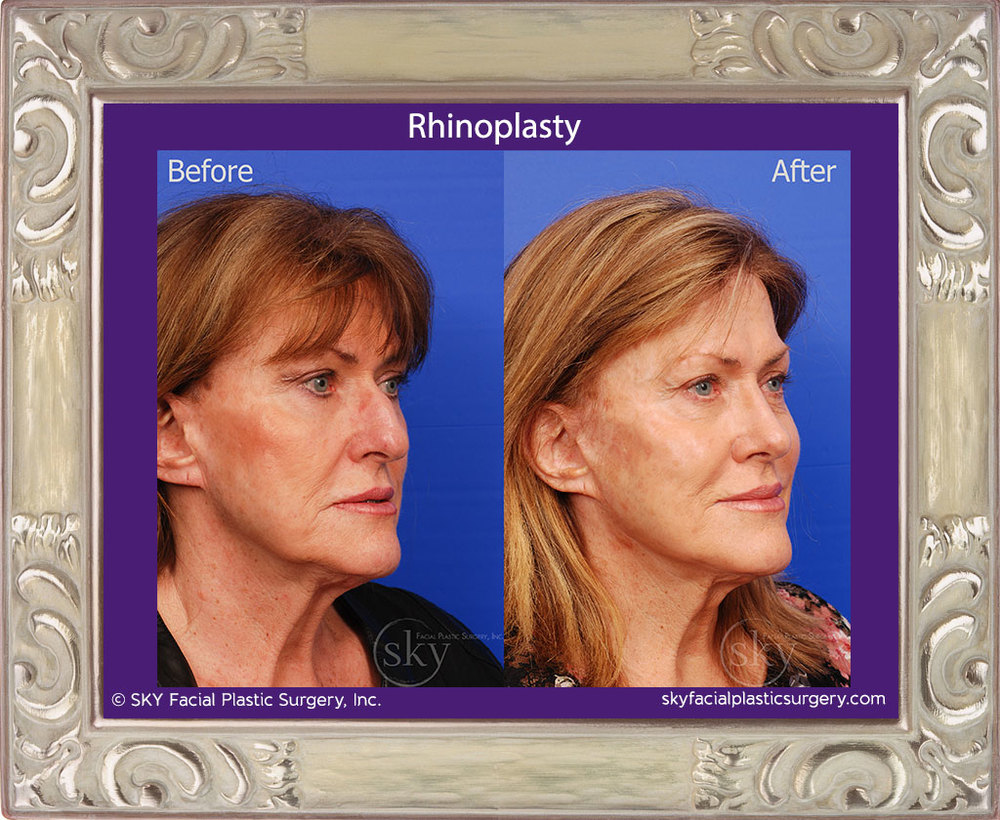 Rhinoplasty - Cosmetic