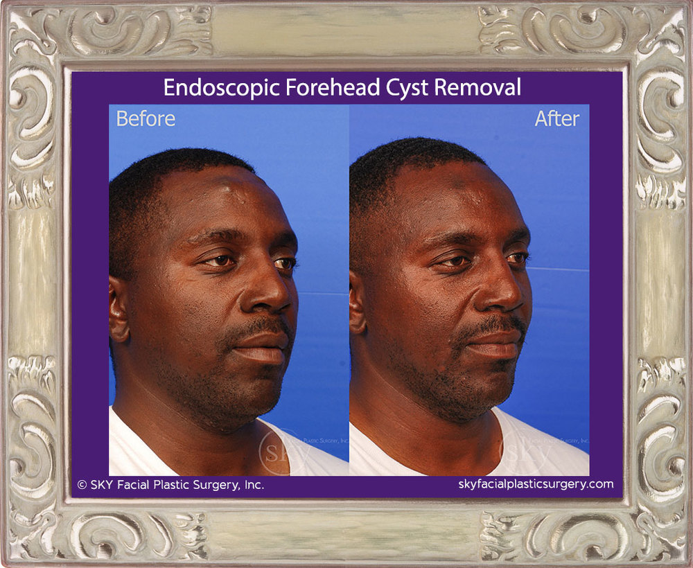 Scarless Endoscopic Forehead Cyst Removal