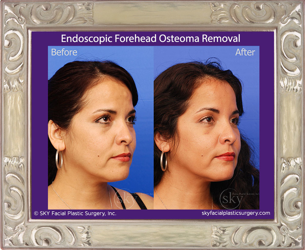 Endoscopic Forehead Osteoma Removal