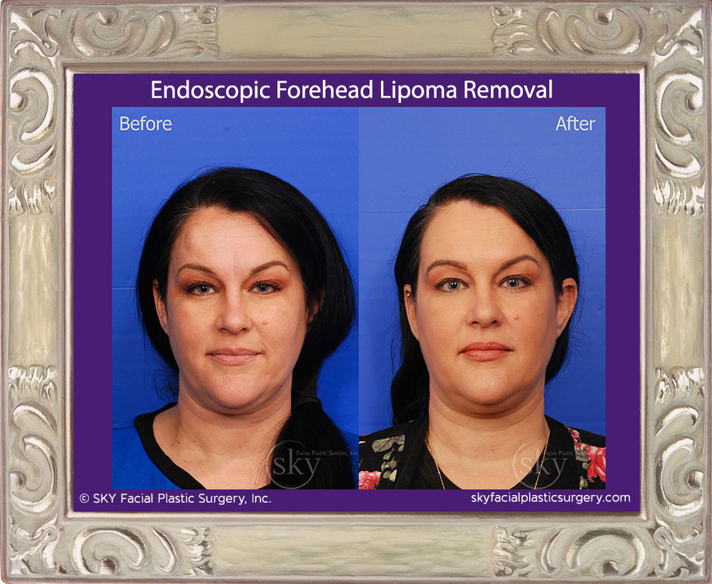Endoscopic Forehead Lipoma Removal