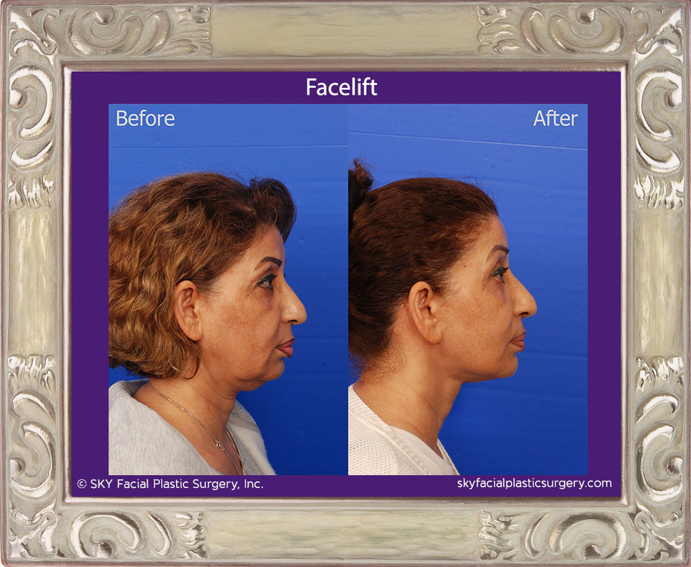 Lower Face and Necklift