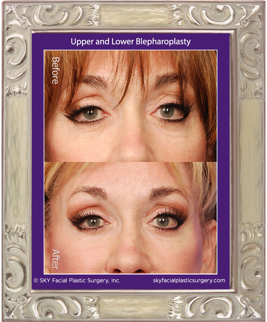 Traditional Upper and Lower Lid Blepharoplasty