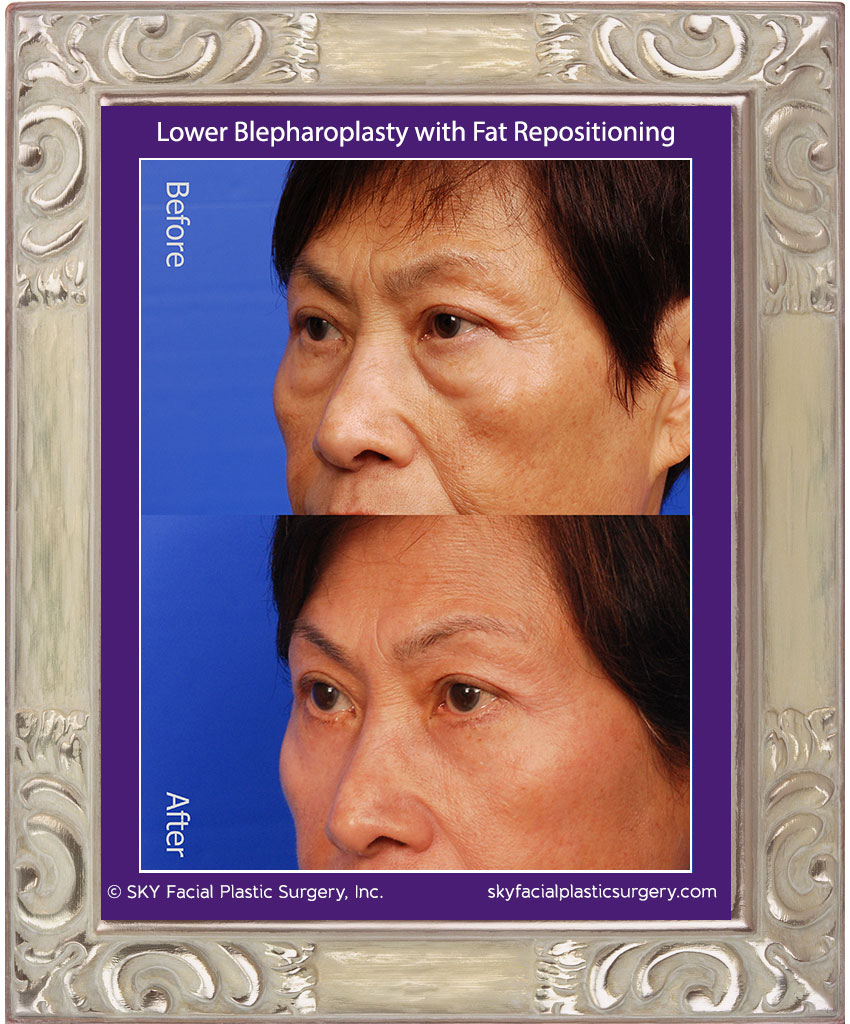 SKY-Facial-Plastic-Surgery-Lower-Lid-Blepharoplasty-13B.jpg