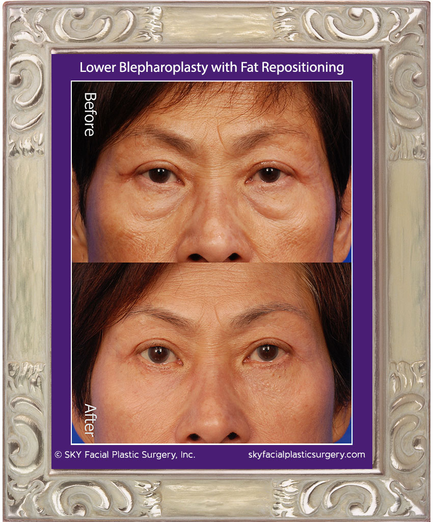 SKY-Facial-Plastic-Surgery-Lower-Lid-Blepharoplasty-13A.jpg