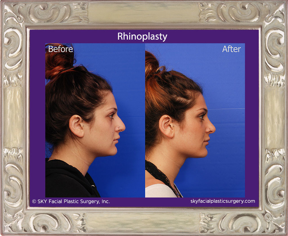 SKY-Facial-Plastic-Surgery-Rhinoplasty-33E.jpg