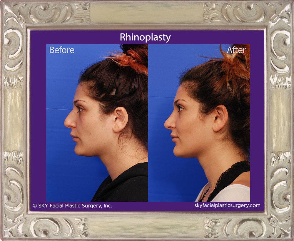 SKY-Facial-Plastic-Surgery-Rhinoplasty-33B.jpg