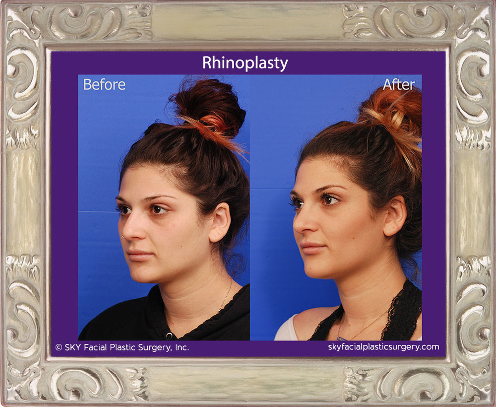 SKY-Facial-Plastic-Surgery-Rhinoplasty-33C.jpg