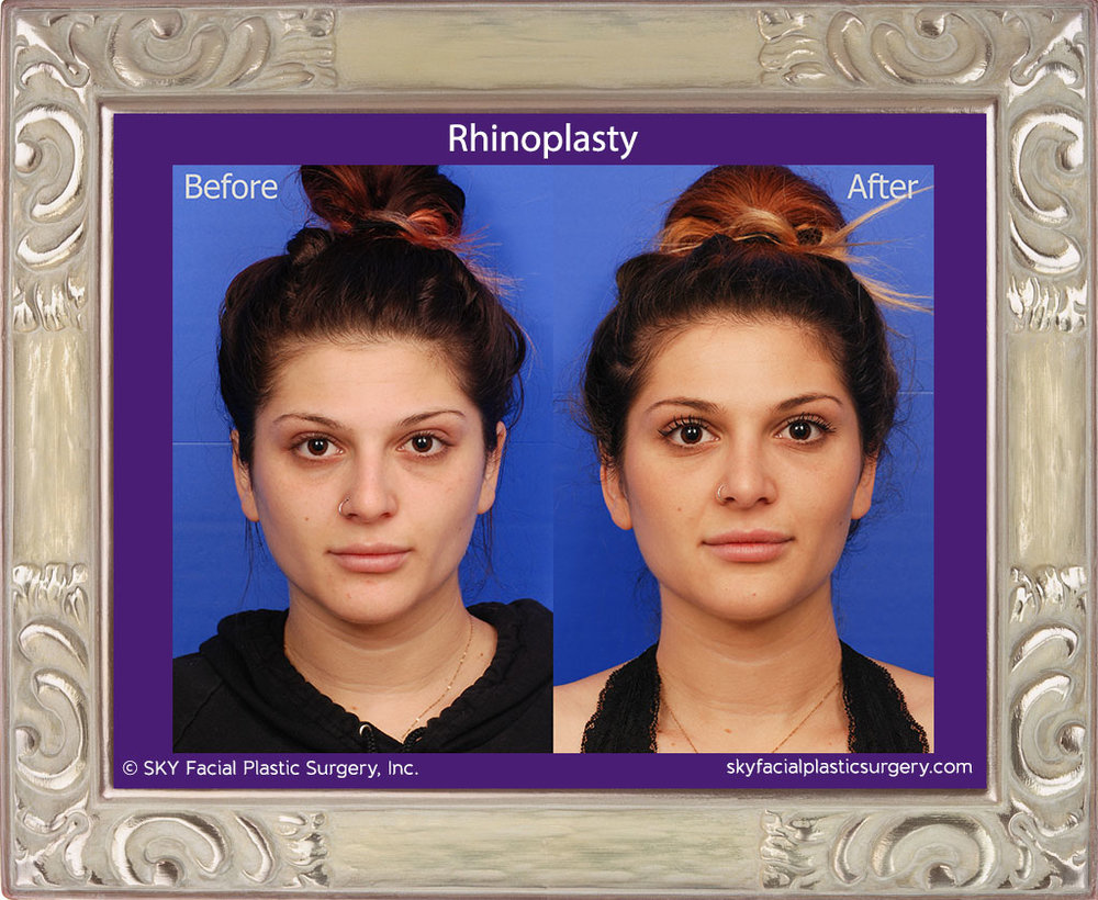 SKY-Facial-Plastic-Surgery-Rhinoplasty-33A.jpg