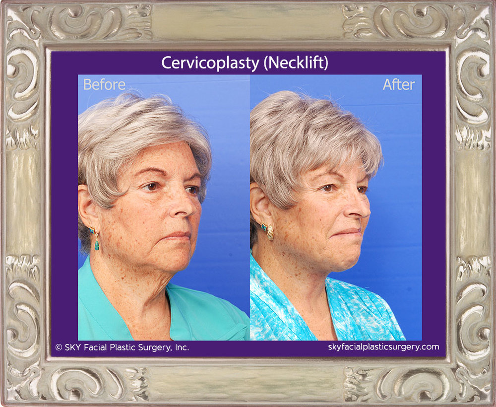 Cervicoplasty-2D.jpg