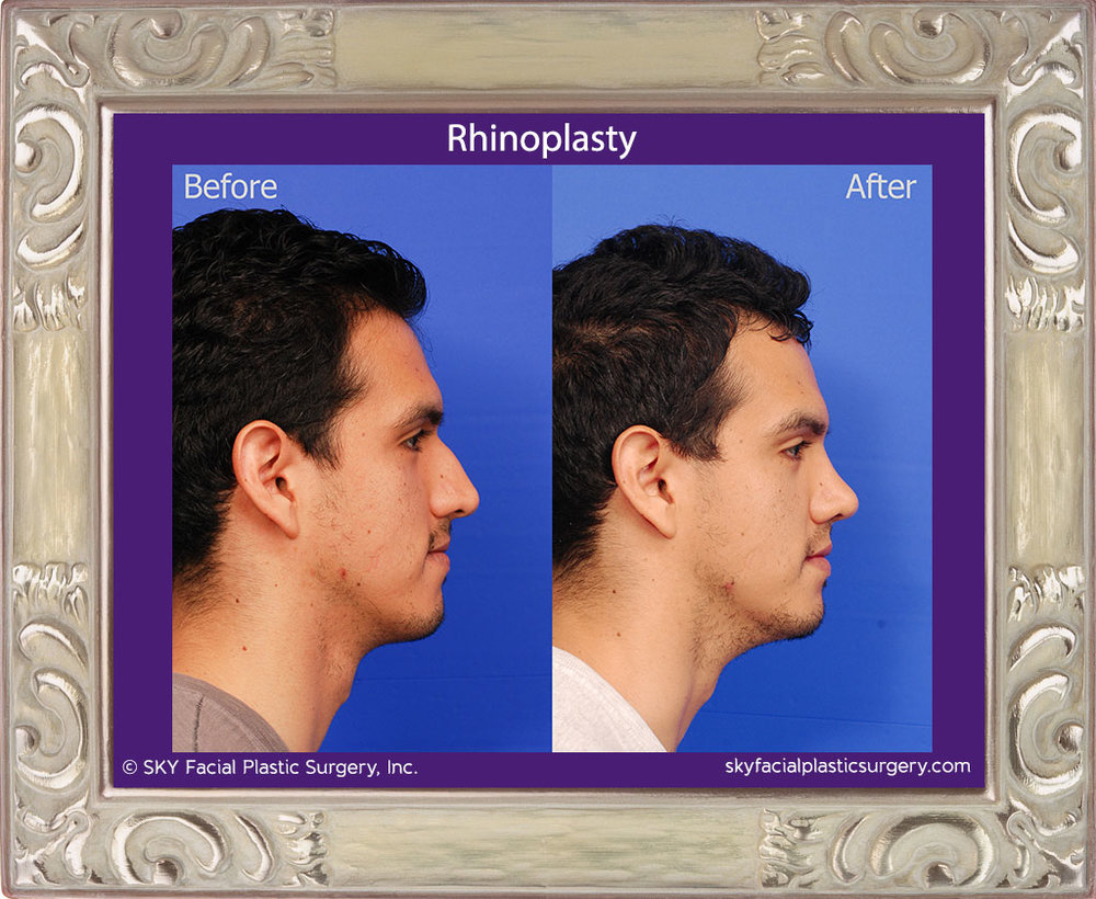 Copy of Male Rhinoplasty