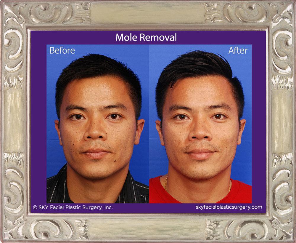 How doctors remove facial moler