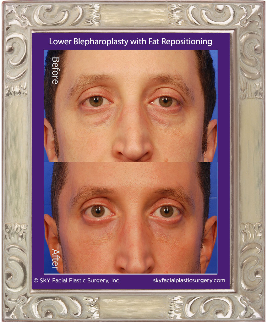 Transconjunctival Lower Lid Blepharoplasty with Fat Repositioning