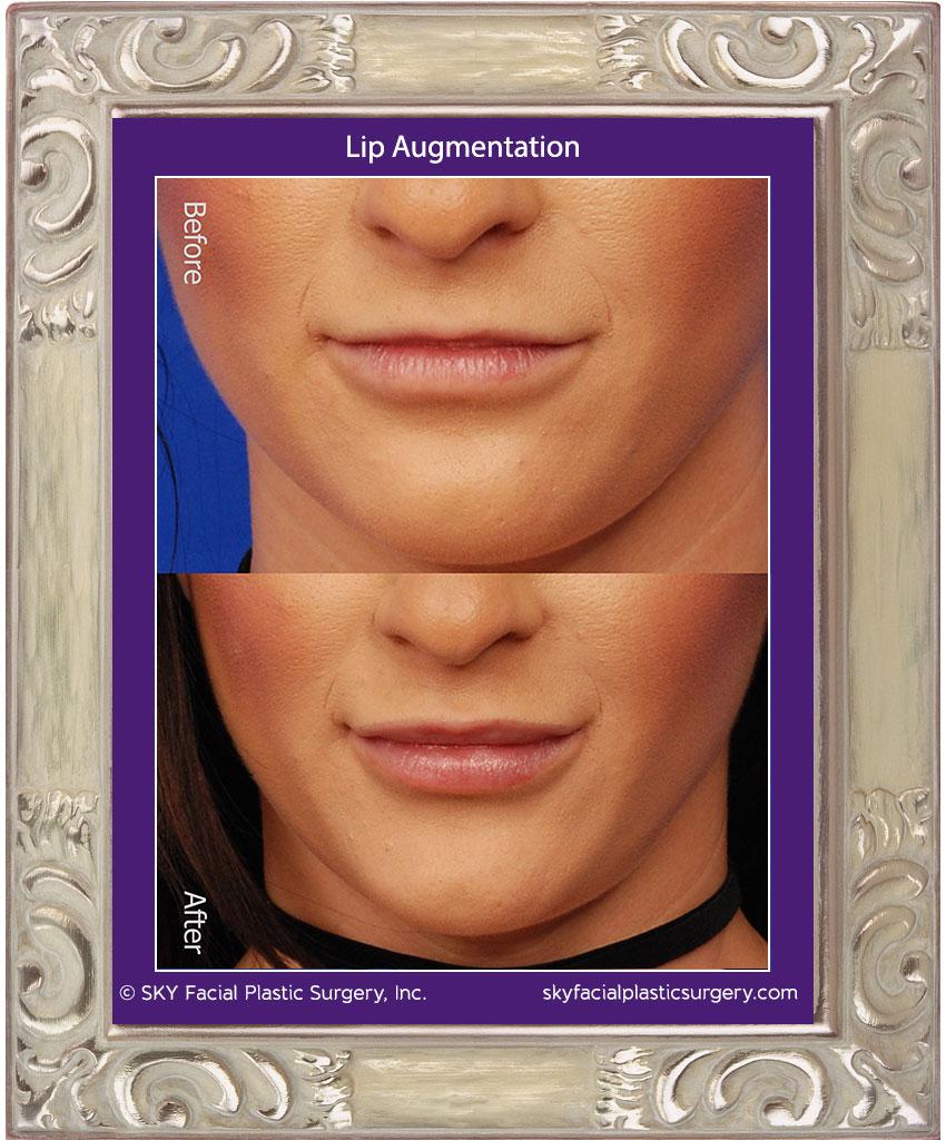 Lips3A.jpg