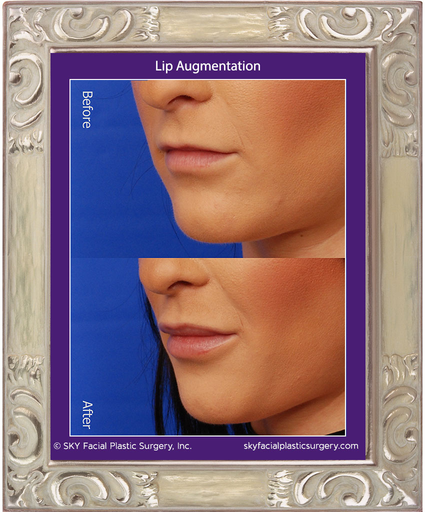Lips3C.jpg
